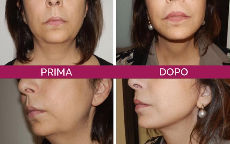 immagini a confronto prima e dopo di lifting viso e collo