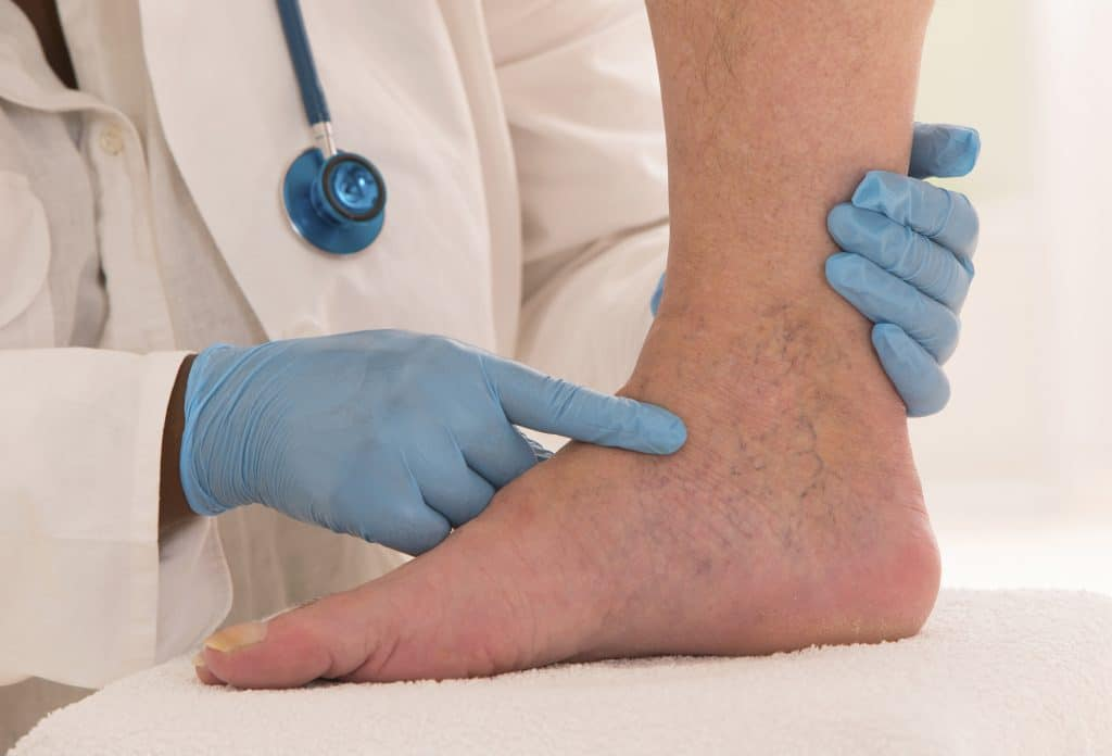 vene varicose su gambe di un paziente