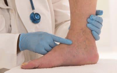 Vene varicose: cure e prevenzione