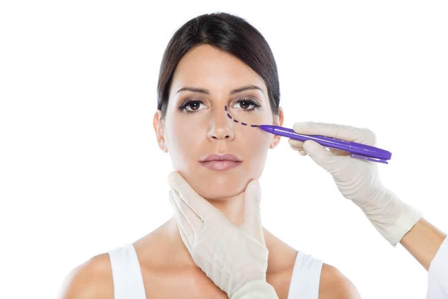 blefaroplastica per paziente donna