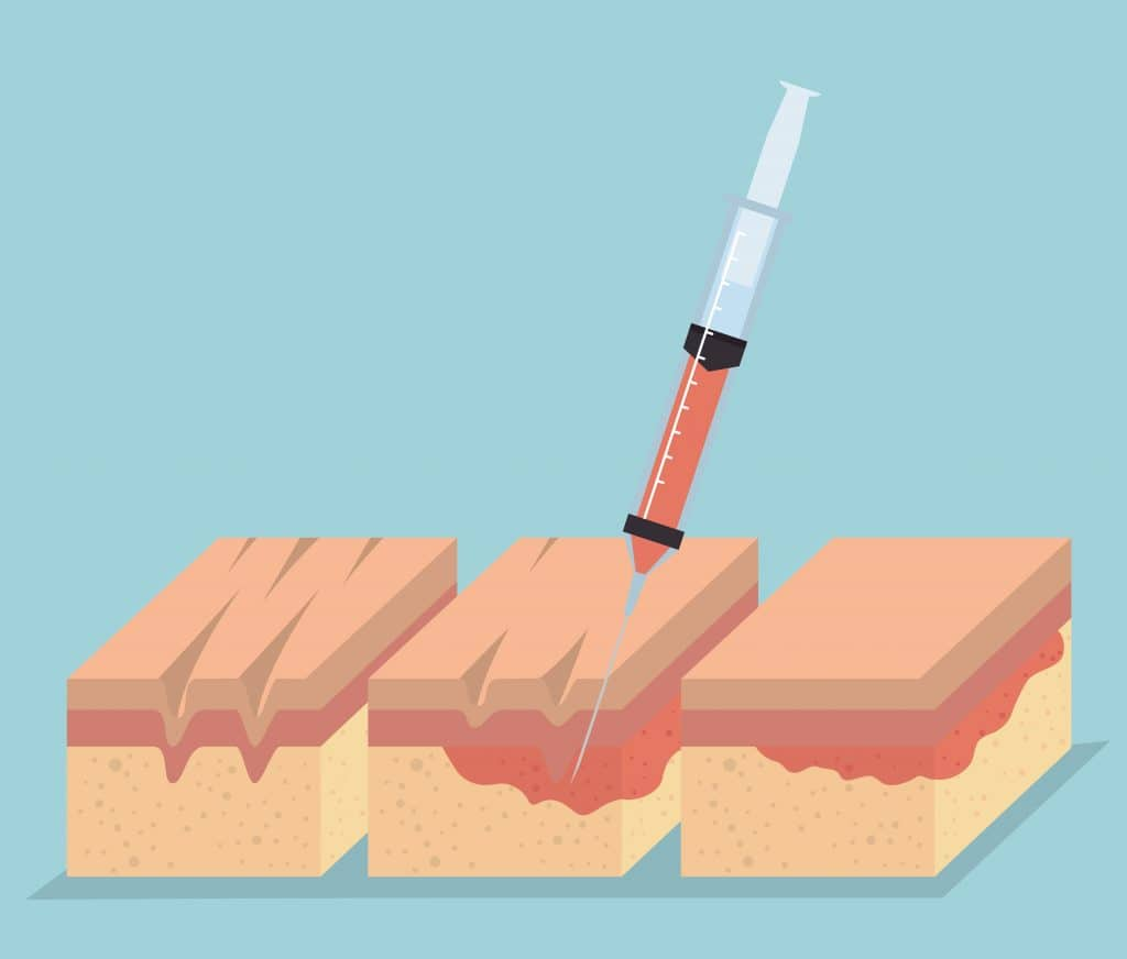 Iniezione di botulino negli strati inferiori della pelle - iperidrosi