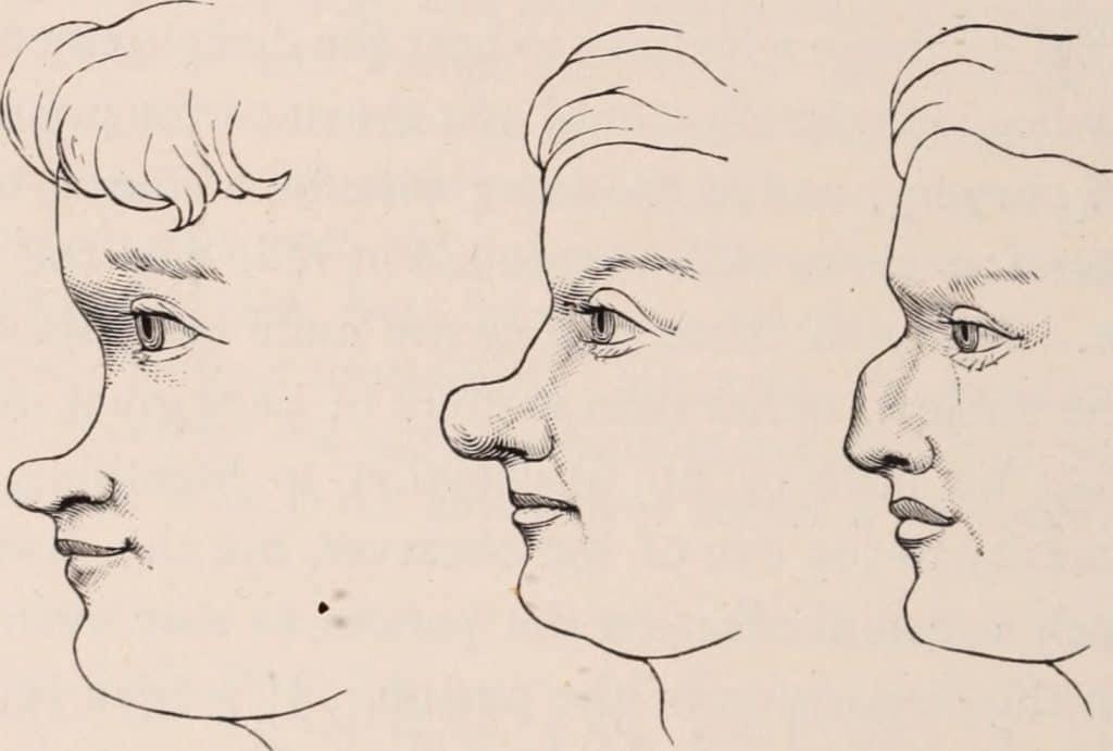 illustrazione di 3 facce con 3 tipi di naso da modificare chirurgicamente con rinoplastica