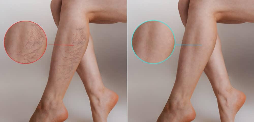 laser per vene varicose prima e dopo